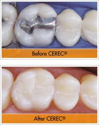 CEREC - Same day crowns - Asheville NC