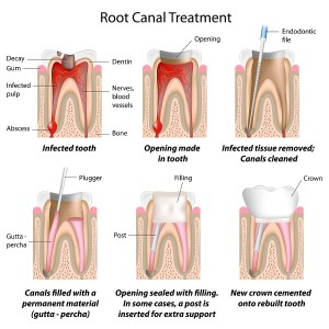 this process enables you to keep your natural tooth while at the same time clearing the infection and filling the cavity with a sealant in order to further