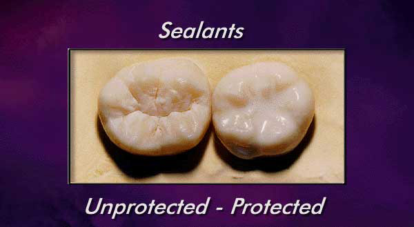 sealants, protected and unprotected